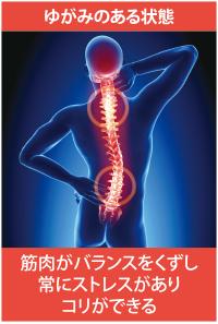 背骨・骨盤がゆがむと筋肉の張り具合がバラバラ-1
